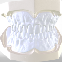 Small Digital Try-in Full Dentures for Injection Molding  3D Printing 223588