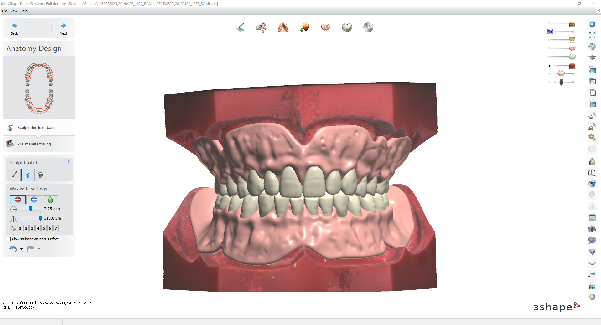Digital Try-in Full Dentures for Injection Molding @ Pinshape