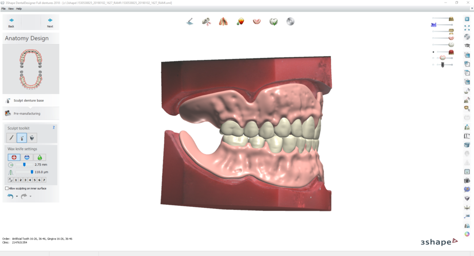 Digital Try-in Full Dentures for Injection Molding  3D Print 223592