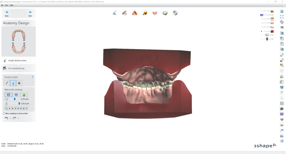 Digital Try-in Full Dentures for Injection Molding  3D Print 223593