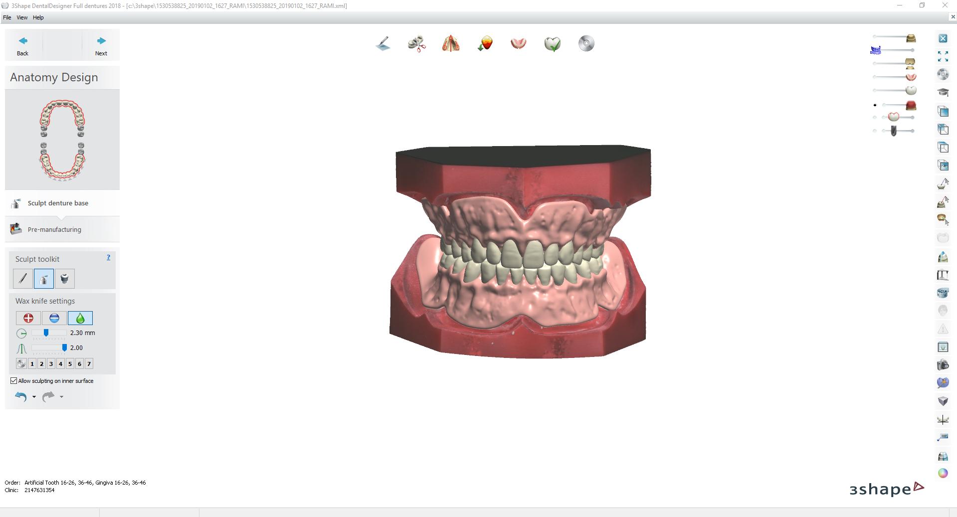 Digital Try-in Full Dentures for Injection Molding @ Pinshape