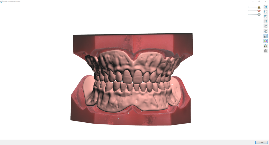 Digital Try-in Full Dentures for Injection Molding  3D Print 223596