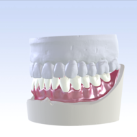 Small Digital Single Jaw Full Denture 3D Printing 228749