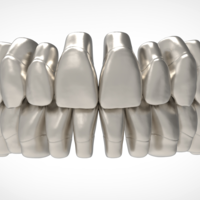 Small Dental Anatomy Library with Thimble Crowns - Azure  3D Printing 241168
