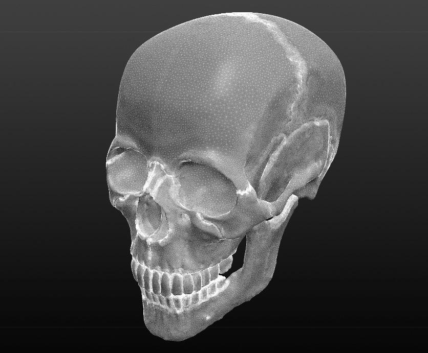 3d Printed Human Skull By Bchan Pinshape