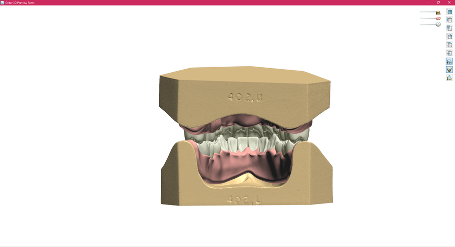 Digital Full Dentures 3D Print 83343