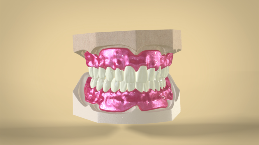 Digital Full Dentures 3D Print 83344