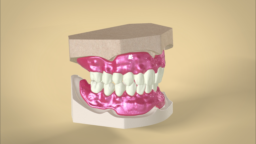Digital Full Dentures 3D Print 83345