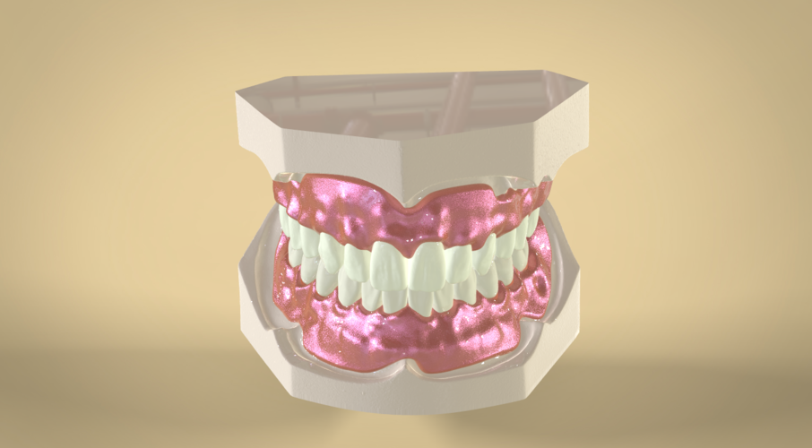 Digital Full Dentures 3D Print 83346