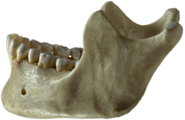 Lower Jaw 3D Print 96719